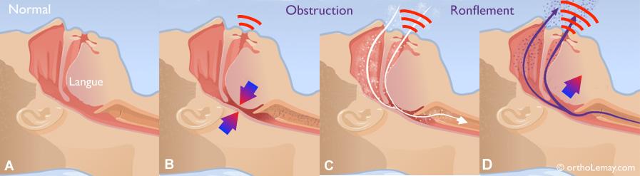 Ronflement-snoring-obstruction-voie-respiratoire-ortholemlay